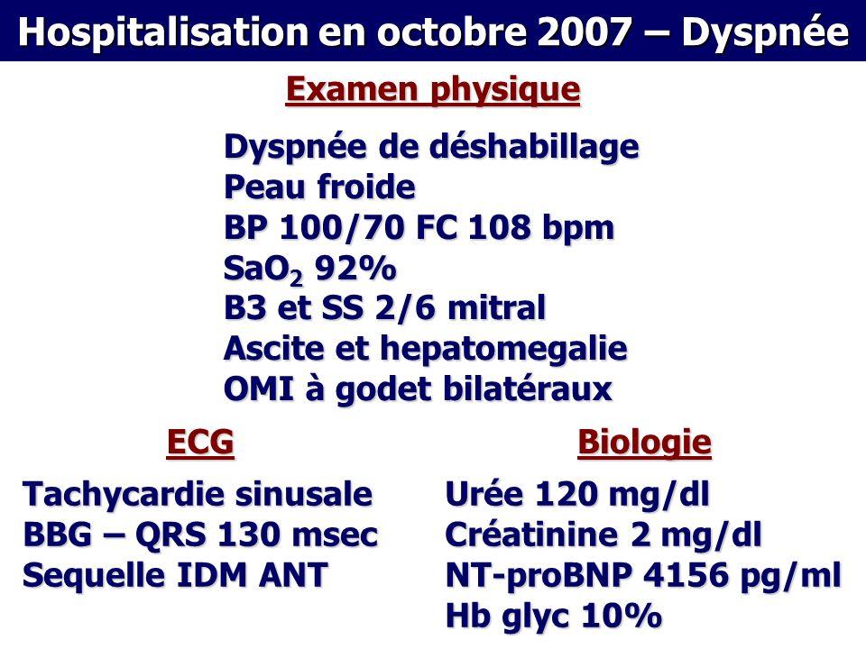 Dyspnée de déshabillage Peau froide BP 100/70 FC 108 bpm SaO 2 92% B3 et SS 2/6 mitral Ascite et hepatomegalie OMI à godet bilatéraux Examen physique