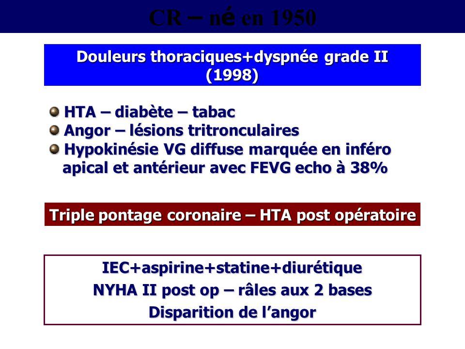 Dyspnée de déshabillage Peau froide BP 100/70 FC 108 bpm SaO 2 92% B3 et SS 2/6 mitral Ascite et hepatomegalie OMI à godet bilatéraux Examen physique Urée 120 mg/dl Créatinine 2 mg/dl NT-proBNP 4156 pg/ml Hb glyc 10% Biologie Tachycardie sinusale BBG – QRS 130 msec Sequelle IDM ANT ECG Hospitalisation en octobre 2007 – Dyspnée