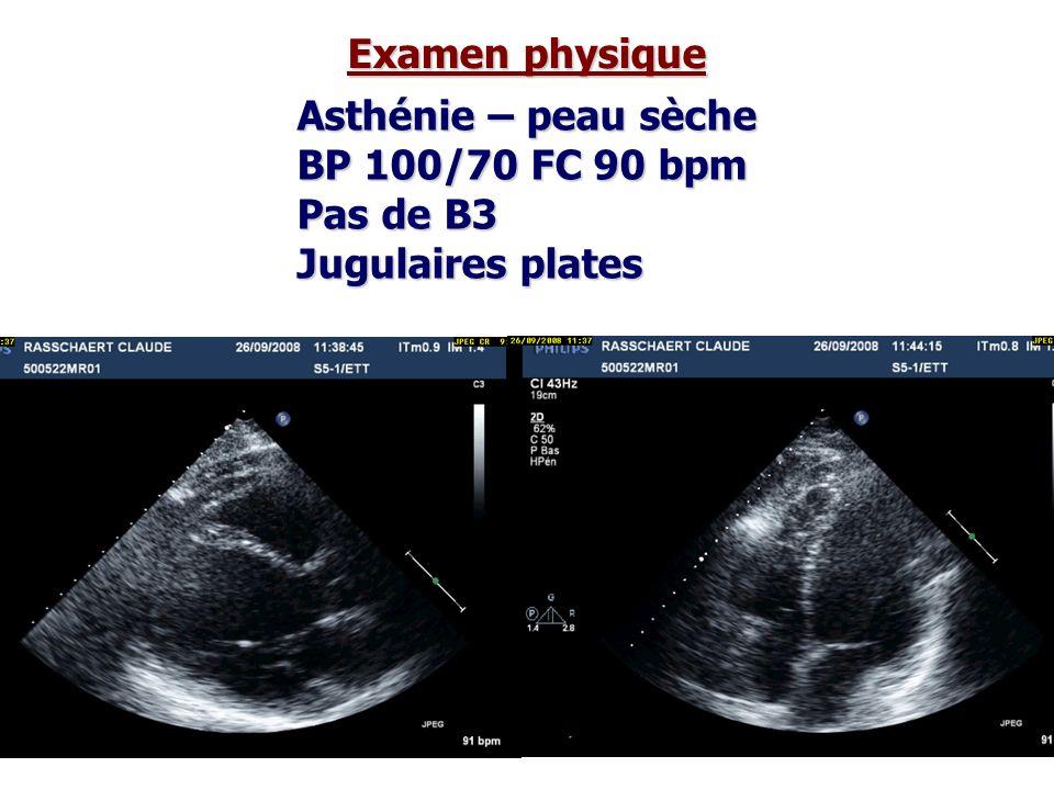 Asthénie – peau sèche BP 100/70 FC 90 bpm Pas de B3 Jugulaires plates Examen physique