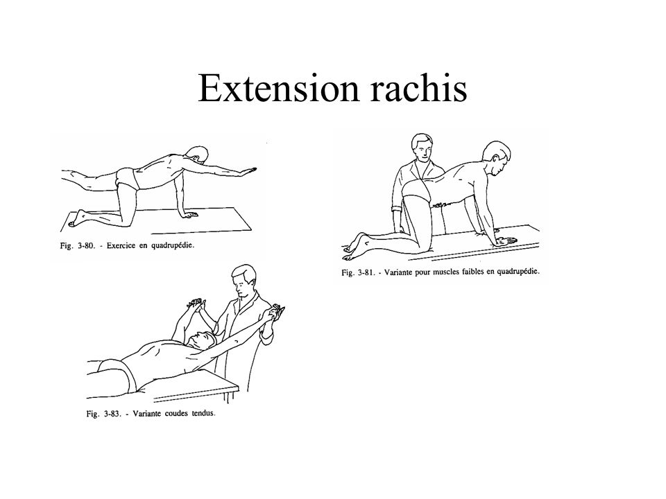 Extension rachis