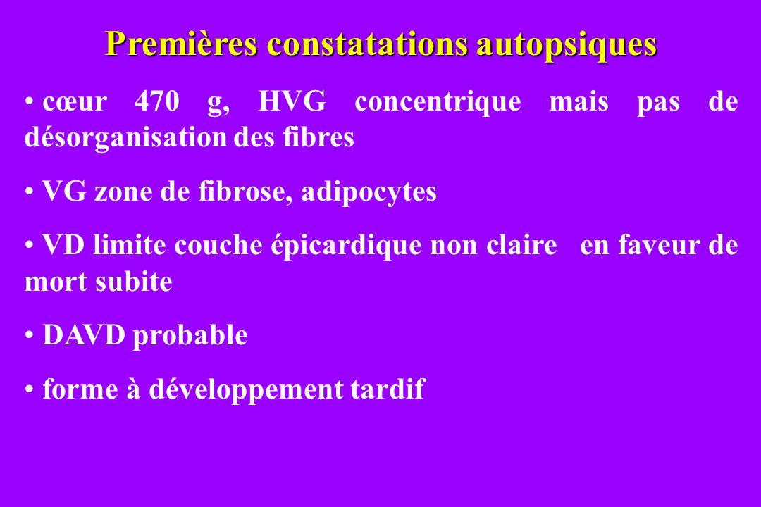 Premières constatations autopsiques cœur 470 g, HVG concentrique mais pas de désorganisation des fibres VG zone de fibrose, adipocytes VD limite couch