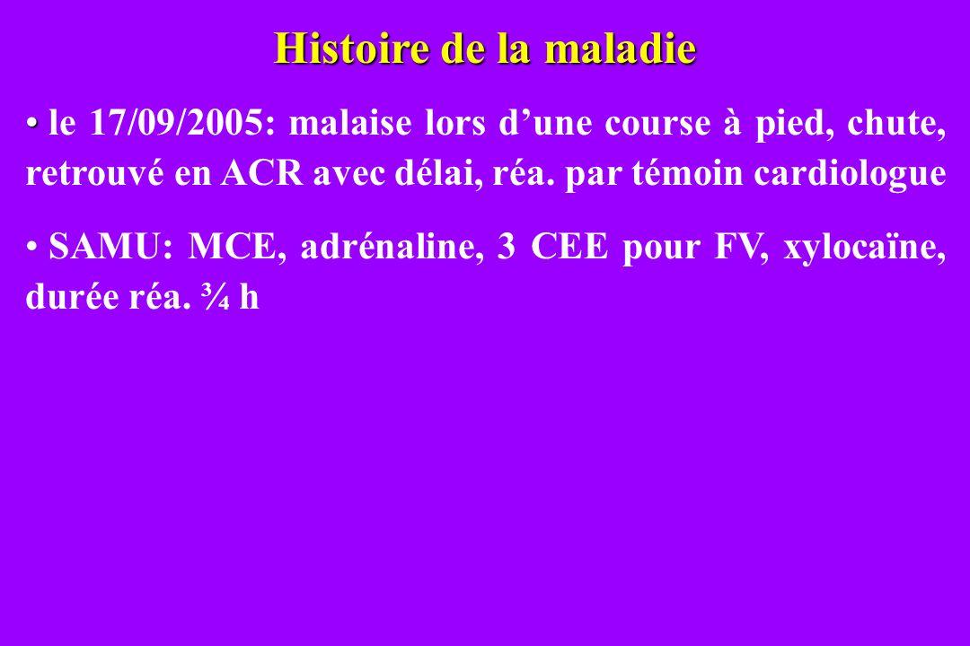 Histoire de la maladie le 17/09/2005: malaise lors dune course à pied, chute, retrouvé en ACR avec délai, réa. par témoin cardiologue SAMU: MCE, adrén