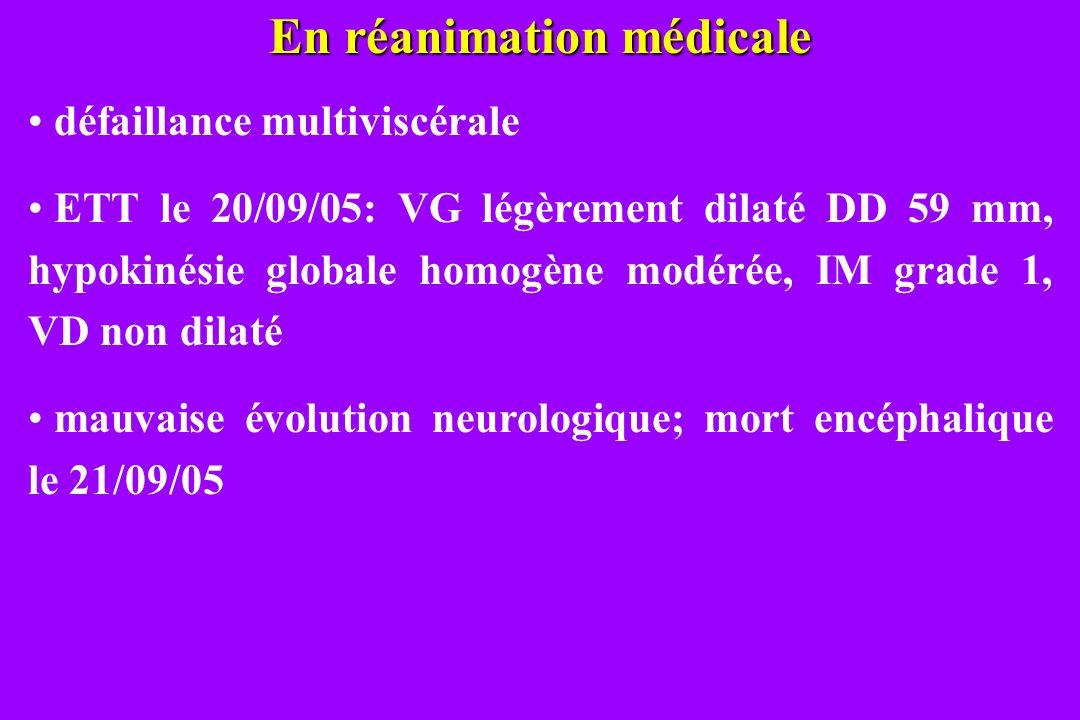 En réanimation médicale défaillance multiviscérale ETT le 20/09/05: VG légèrement dilaté DD 59 mm, hypokinésie globale homogène modérée, IM grade 1, V
