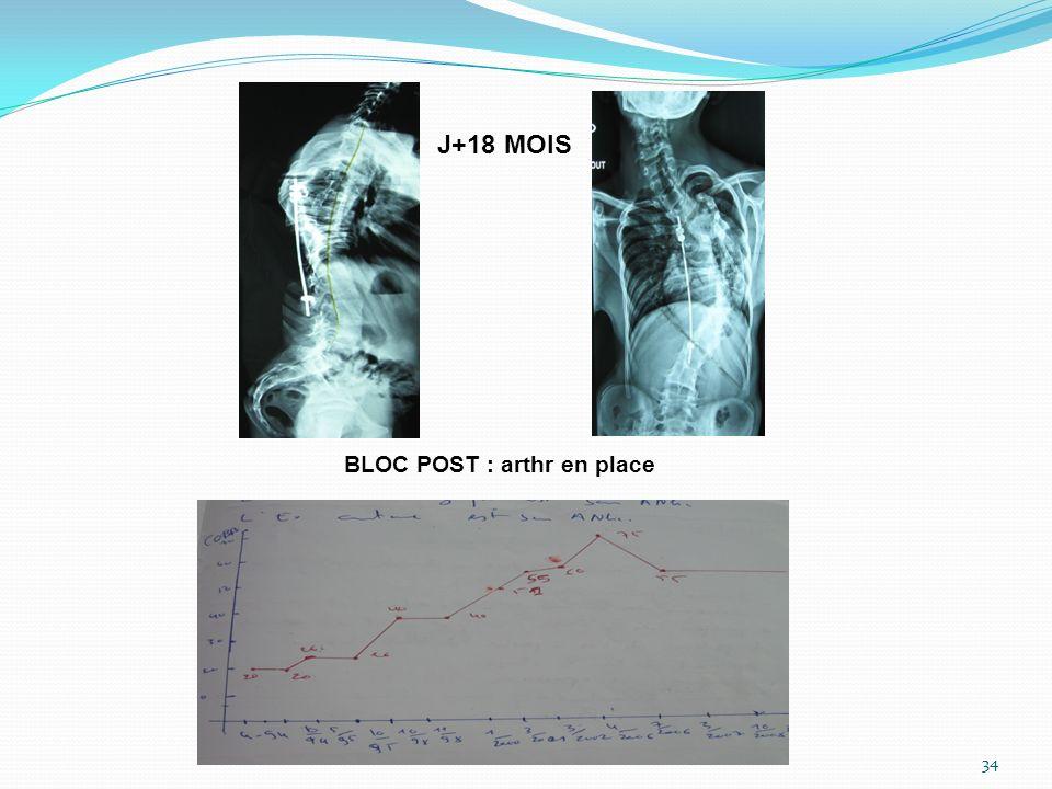 J+18 MOIS BLOC POST : arthr en place 34