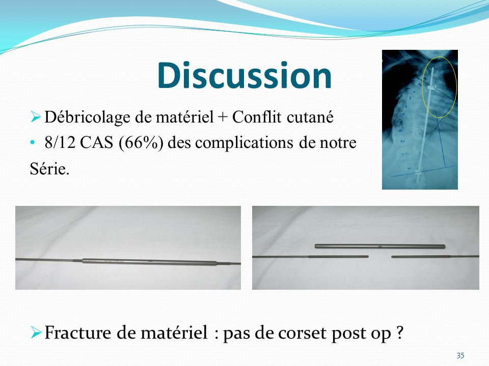 Débricolage de matériel + Conflit cutané 8/12 CAS (66%) des complications de notre Série.