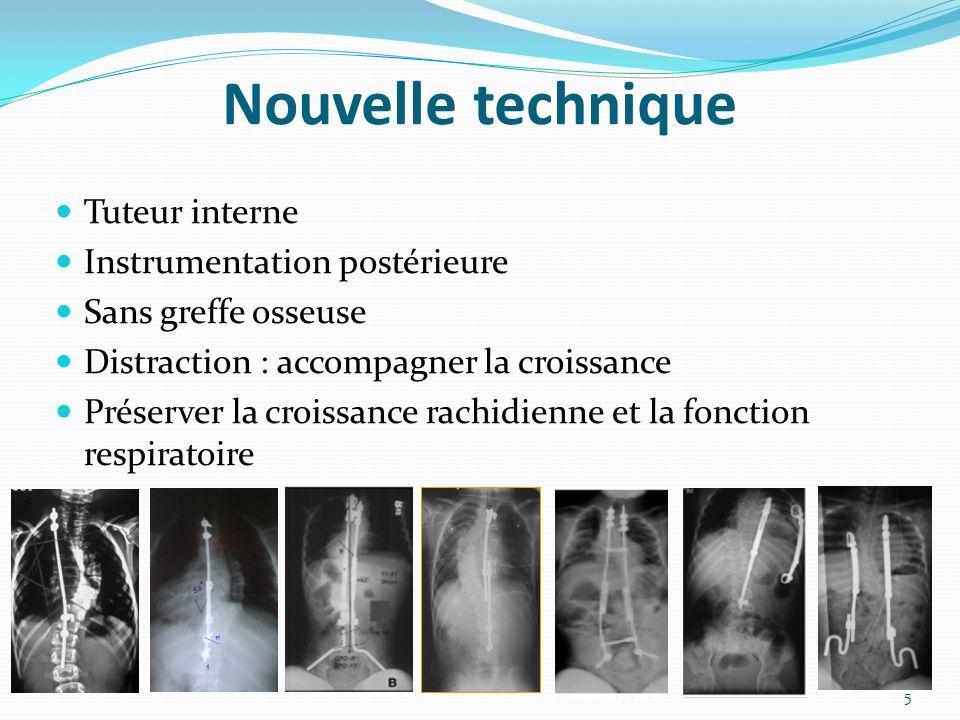 Nouvelle technique Tuteur interne Instrumentation postérieure Sans greffe osseuse Distraction : accompagner la croissance Préserver la croissance rachidienne et la fonction respiratoire 5