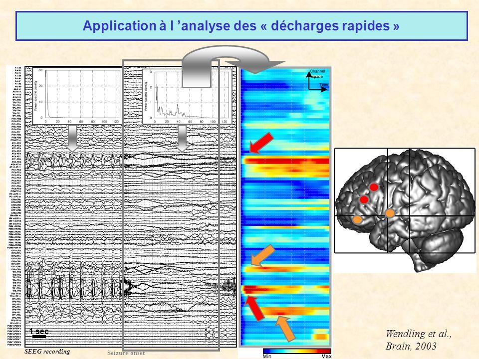 SEEG recording 1 sec Seizure onset Application à l analyse des « décharges rapides » Wendling et al., Brain, 2003