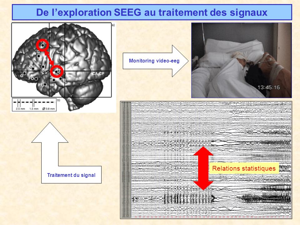 Modèles de réseaux de neurones The spatio-temporal activity of a square array of 6400 simulated neurons in response to a random (excitatory Poisson spike train input, mean interspike interval 10ms) 5% excitatory cells.