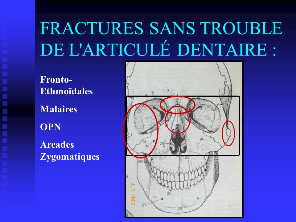 FRACTURES SANS TROUBLE DE L'ARTICULÉ DENTAIRE : Fronto- Ethmoïdales Malaires OPN Arcades Zygomatiques
