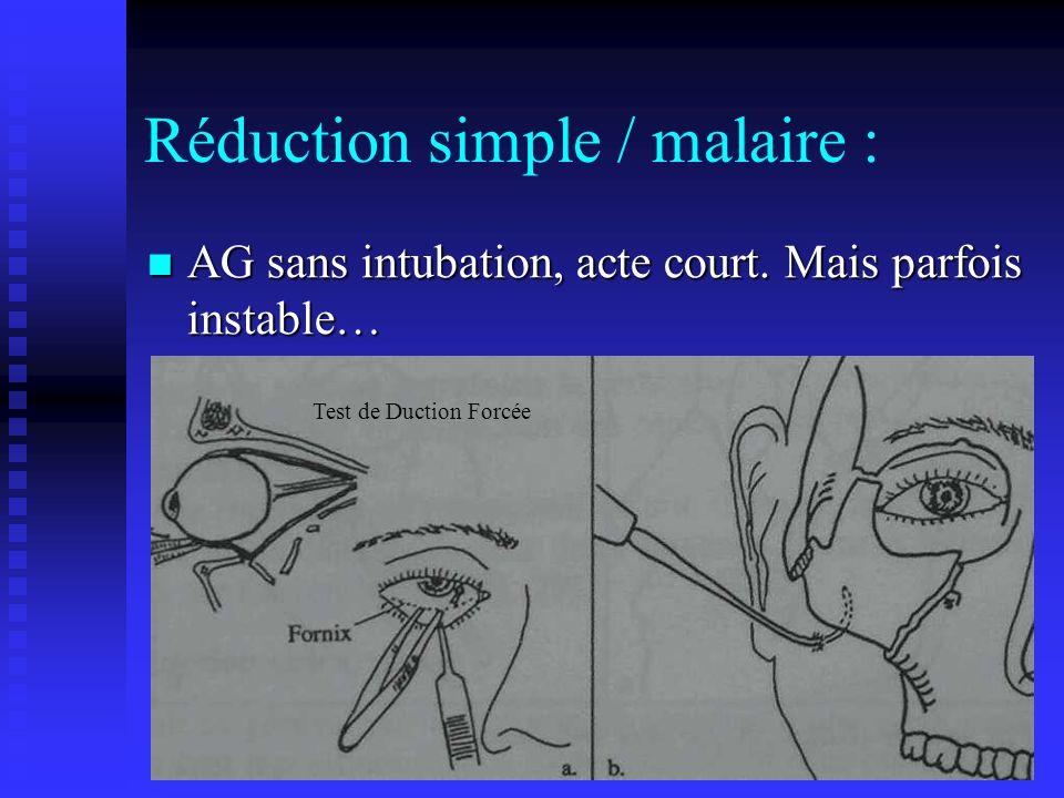 Réduction simple / malaire : AG sans intubation, acte court. Mais parfois instable… AG sans intubation, acte court. Mais parfois instable… Test de Duc