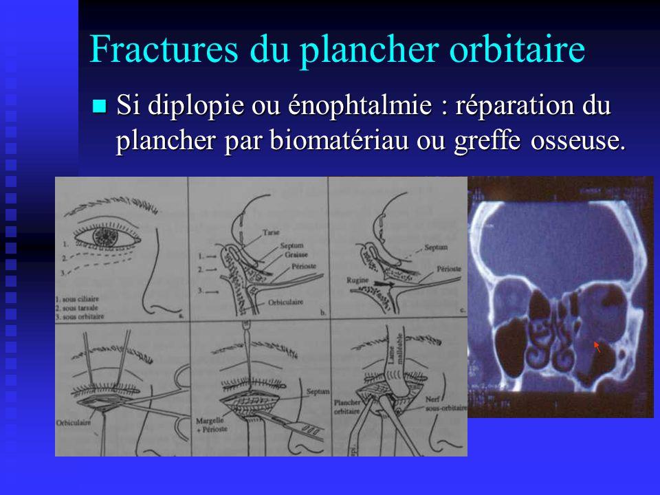 Fractures du plancher orbitaire Si diplopie ou énophtalmie : réparation du plancher par biomatériau ou greffe osseuse. Si diplopie ou énophtalmie : ré