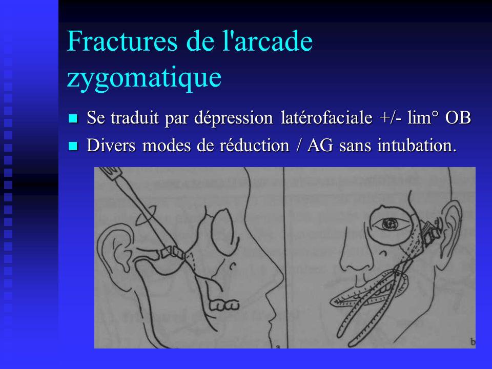 Fractures de l arcade zygomatique Se traduit par dépression latérofaciale +/- lim° OB Se traduit par dépression latérofaciale +/- lim° OB Divers modes de réduction / AG sans intubation.