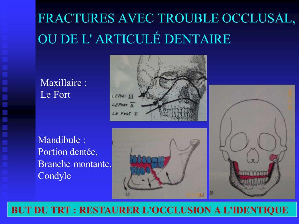FRACTURES AVEC TROUBLE OCCLUSAL, OU DE L' ARTICULÉ DENTAIRE Mandibule : Portion dentée, Branche montante, Condyle Maxillaire : Le Fort BUT DU TRT : RE