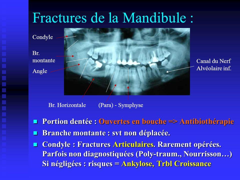 Fractures de la Mandibule : Portion dentée : Ouvertes en bouche => Antibiothérapie Portion dentée : Ouvertes en bouche => Antibiothérapie Branche montante : svt non déplacée.
