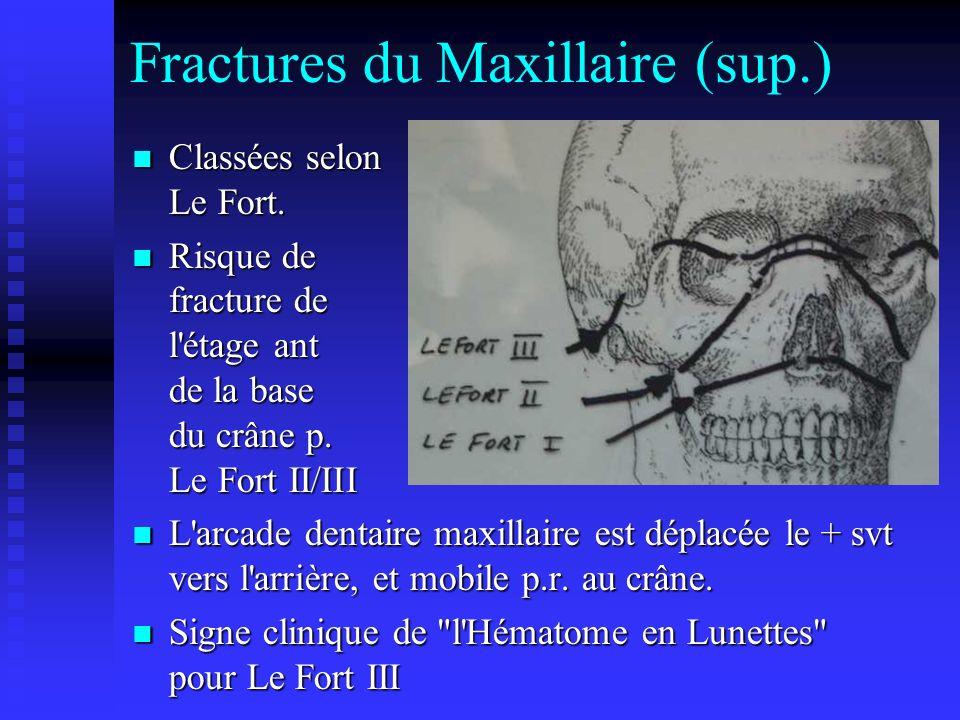 Fractures du Maxillaire (sup.) Classées selon Le Fort. Classées selon Le Fort. Risque de fracture de l'étage ant de la base du crâne p. Le Fort II/III