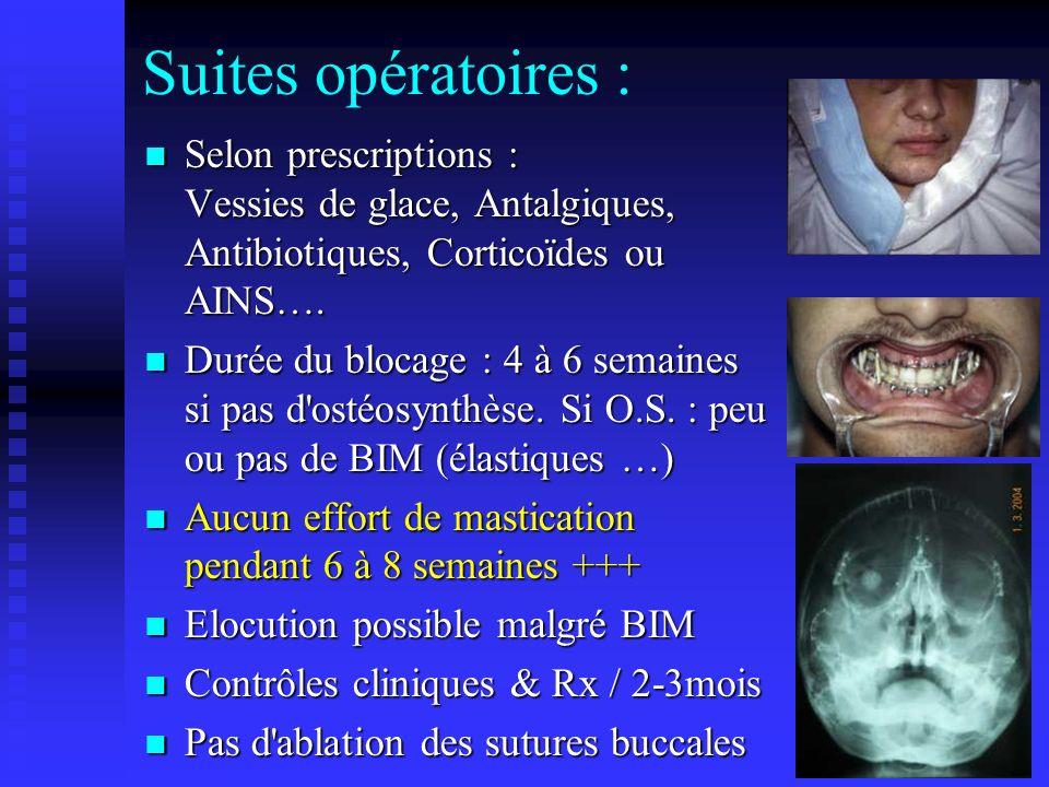 Suites opératoires : Selon prescriptions : Vessies de glace, Antalgiques, Antibiotiques, Corticoïdes ou AINS…. Selon prescriptions : Vessies de glace,