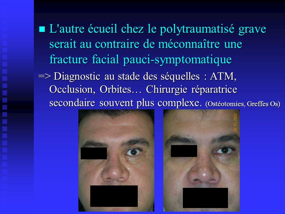 L autre écueil chez le polytraumatisé grave serait au contraire de méconnaître une fracture facial pauci-symptomatique => Diagnostic au stade des séquelles : ATM, Occlusion, Orbites… Chirurgie réparatrice secondaire souvent plus complexe.