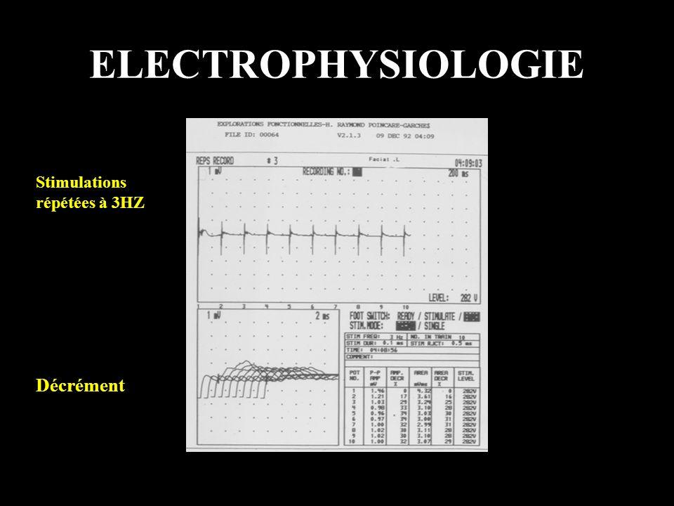 PATHOLOGIE AUTO-IMMUNE 1.Auto-Anticorps - Thymus 2.Evolution par poussées 3.Autre(s) pathologie(s) auto-immune(s)