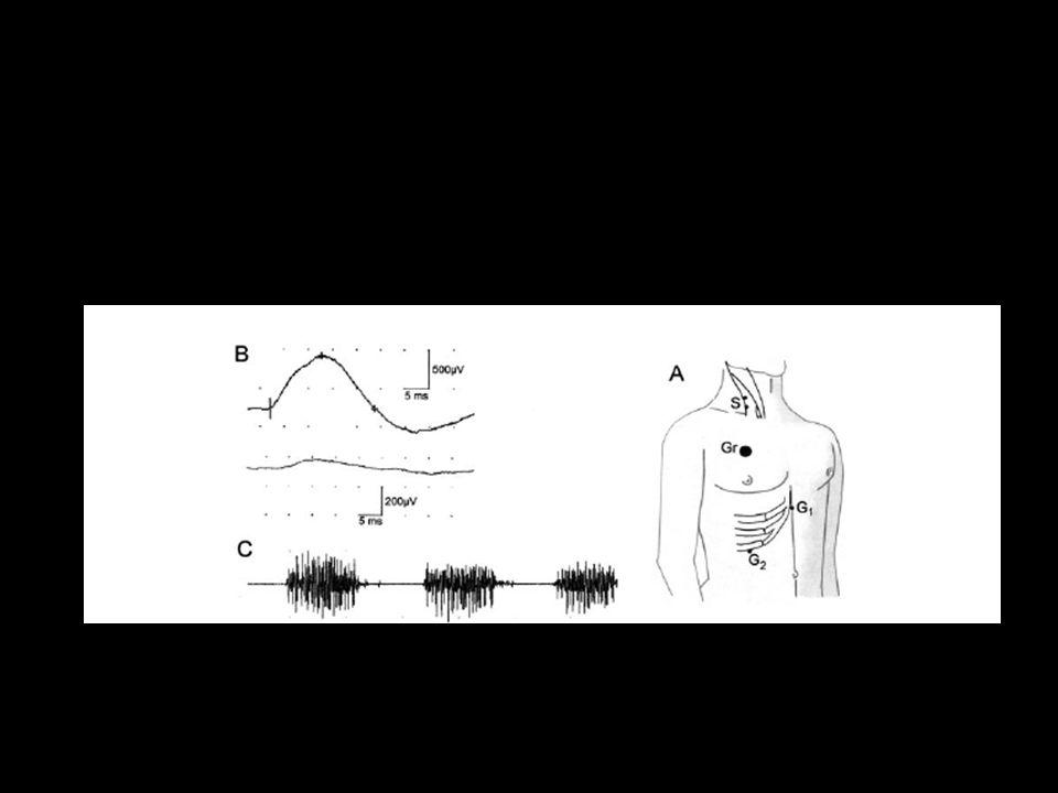 Durant et al – Lancet Neurology - 2006