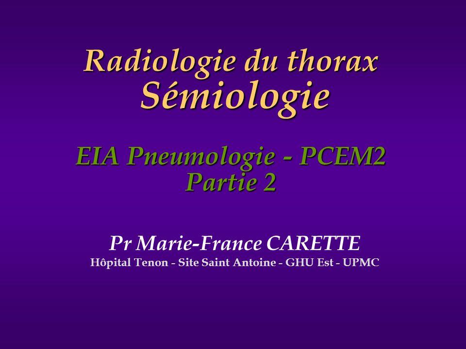 Pr Marie-France CARETTE Hôpital Tenon - Site Saint Antoine - GHU Est - UPMC Radiologie du thorax Sémiologie EIA Pneumologie - PCEM2 Partie 2