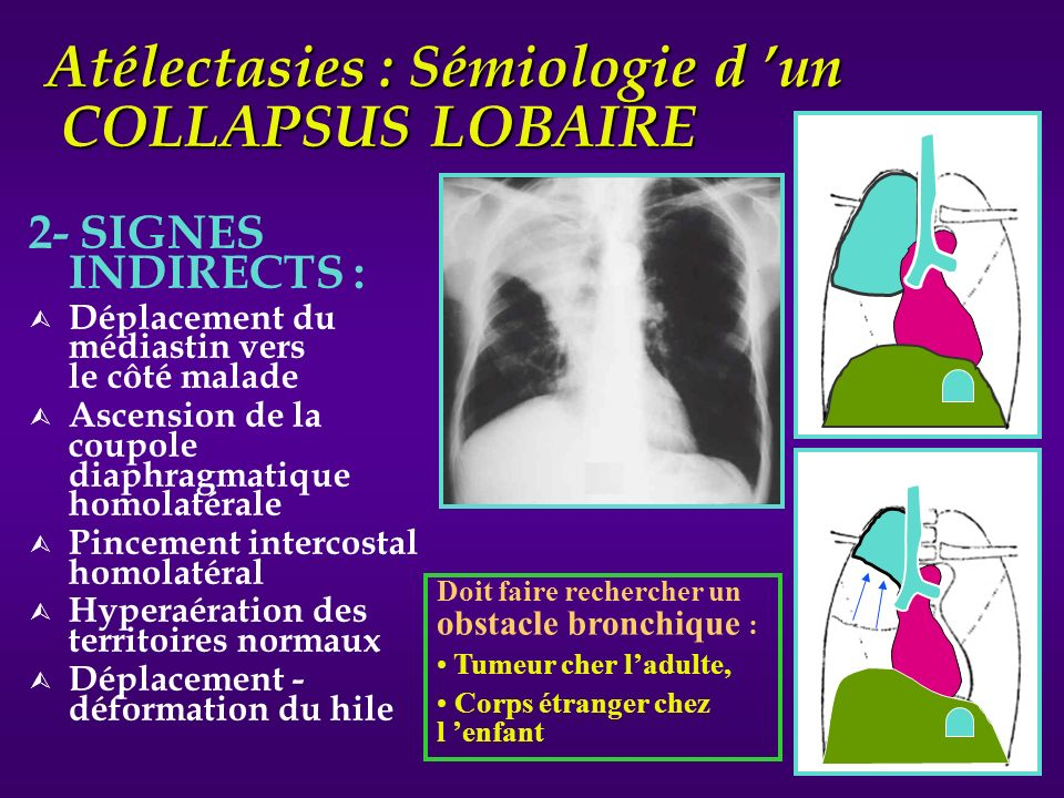 Atélectasies : Sémiologie d un COLLAPSUS LOBAIRE 2- SIGNES INDIRECTS : Ù Déplacement du médiastin vers le côté malade Ù Ascension de la coupole diaphr