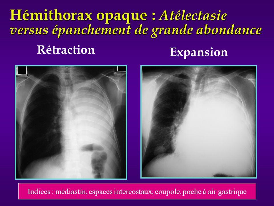 Rétraction Hémithorax opaque : Atélectasie versus épanchement de grande abondance Expansion Indices : médiastin, espaces intercostaux, coupole, poche