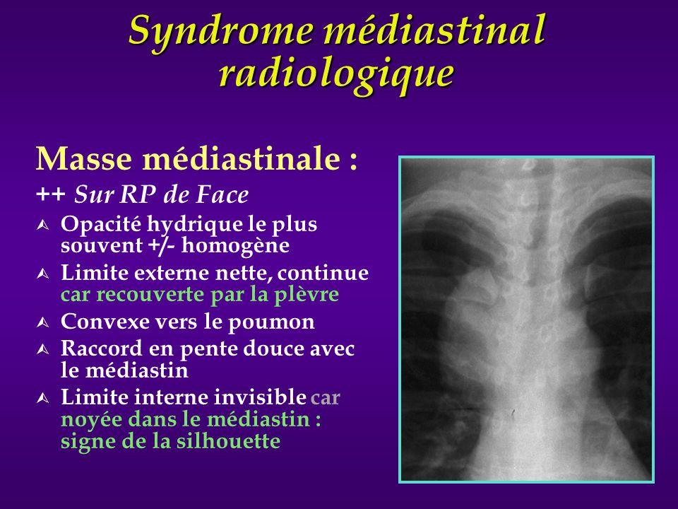 Syndrome médiastinal radiologique Masse médiastinale : ++ Sur RP de Face Ù Opacité hydrique le plus souvent +/- homogène Ù Limite externe nette, conti