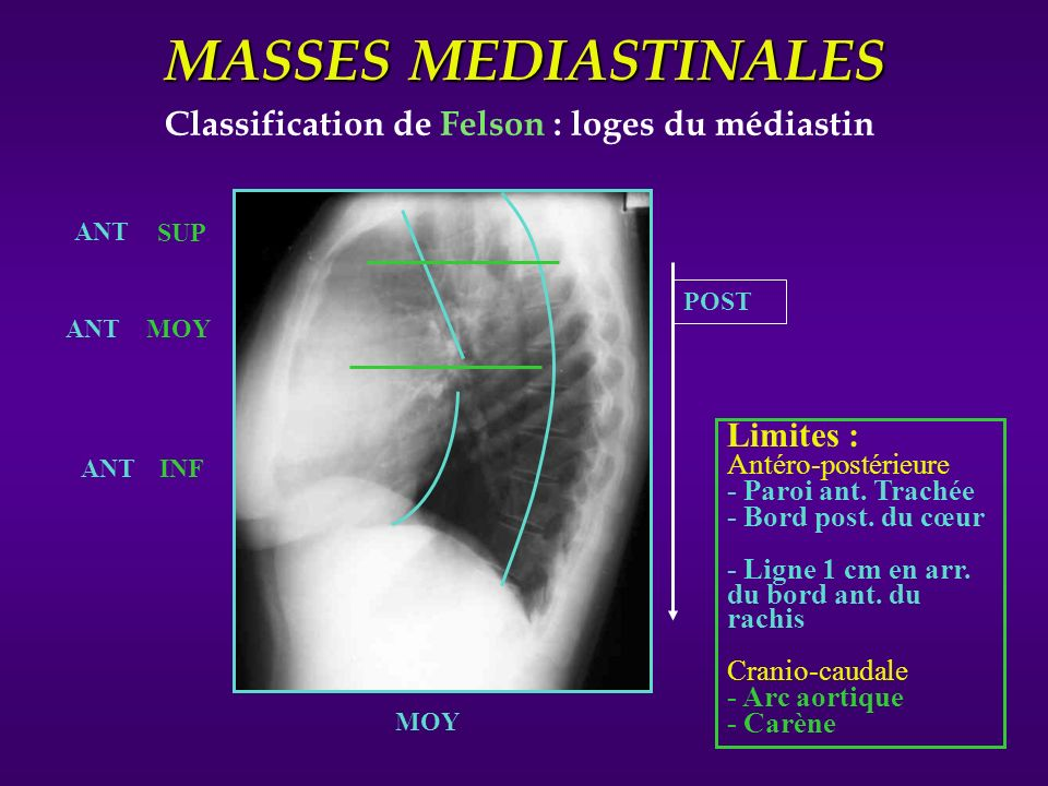 MASSES MEDIASTINALES Classification de Felson : loges du médiastin ANT MOY POST Limites : Antéro-postérieure - Paroi ant. Trachée - Bord post. du cœur