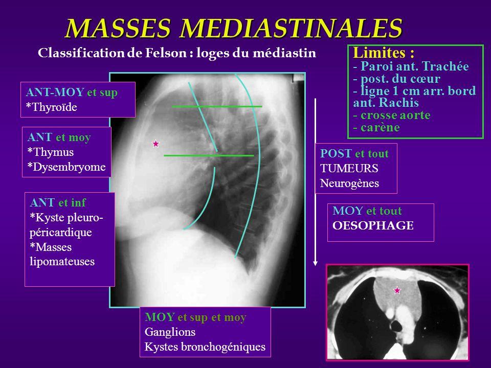 Masses Médiastinales