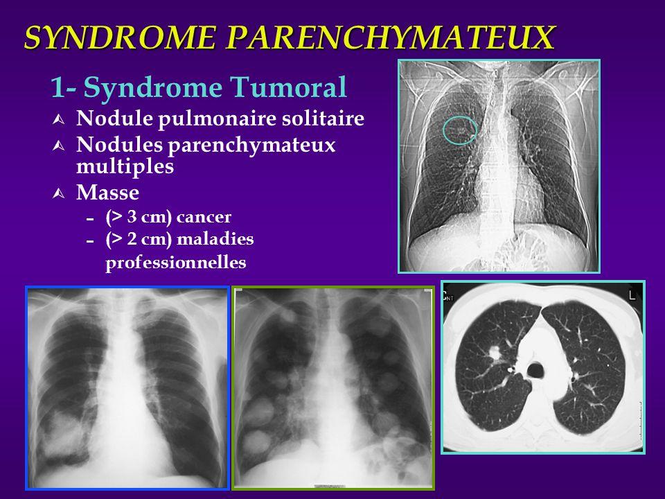 SYNDROME PARENCHYMATEUX 1- Syndrome Tumoral Ù Nodule pulmonaire solitaire Ù Nodules parenchymateux multiples Ù Masse (> 3 cm) cancer (> 2 cm) maladies