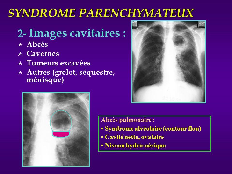 SYNDROME PARENCHYMATEUX 2- Images cavitaires : Ù Abcès Ù Cavernes Ù Tumeurs excavées Ù Autres (grelot, séquestre, ménisque) Abcès pulmonaire : Syndrom