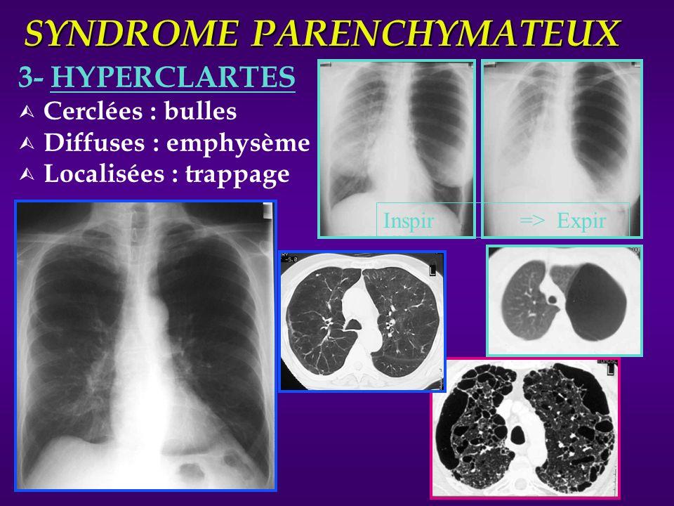 SYNDROME PARENCHYMATEUX 3- HYPERCLARTES Ù Cerclées : bulles Ù Diffuses : emphysème Ù Localisées : trappage Inspir => Expir