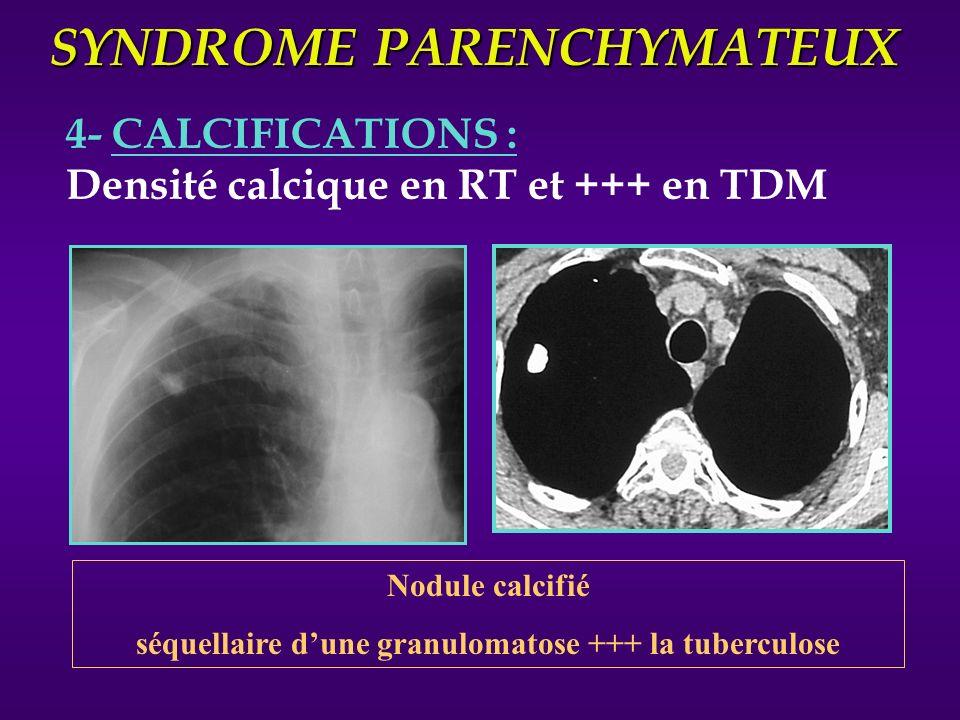 SYNDROME PARENCHYMATEUX 4- CALCIFICATIONS : Densité calcique en RT et +++ en TDM Nodule calcifié séquellaire dune granulomatose +++ la tuberculose