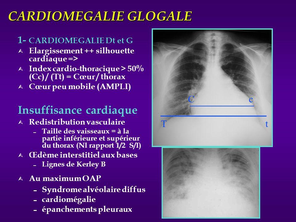 CARDIOMEGALIE GLOGALE 1- CARDIOMEGALIE Dt et G Ù Elargissement ++ silhouette cardiaque => Ù Index cardio-thoracique > 50% (Cc) / (Tt) = Cœur / thorax