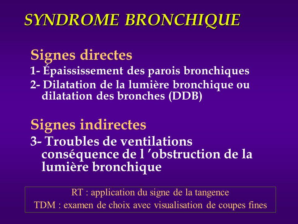 SYNDROME BRONCHIQUE 1- Epaississement des parois bronchiques image en rail 2- Dilatation de la lumière bronchique (DDB) clartés finement cerclées images réticulées en pseudo « rayon de miel » en réseau opacités en « V » ou « Y » cavités avec niveaux liquides images nodulaires Bronches vides Bronches pleines