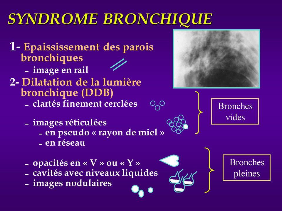SYNDROME BRONCHIQUE 1- Epaississement des parois bronchiques image en rail 2- Dilatation de la lumière bronchique (DDB) clartés finement cerclées imag