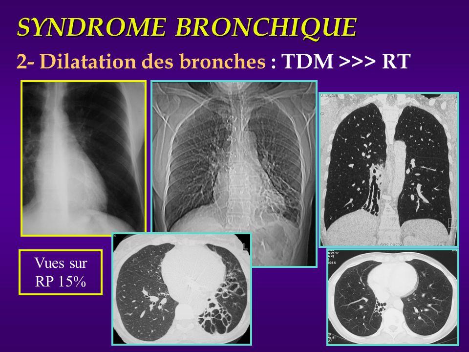 SYNDROME BRONCHIQUE 3- Troubles de ventilation fonction de lobstruction : A - Distale => Atélectasies en bande B - Incomplète => Trappage C - Complète - atélectasie (Cf)