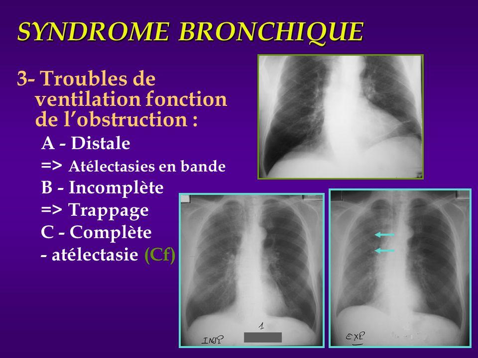 SYNDROME BRONCHIQUE 3- Troubles de ventilation fonction de lobstruction : A - Distale => Atélectasies en bande B - Incomplète => Trappage C - Complète
