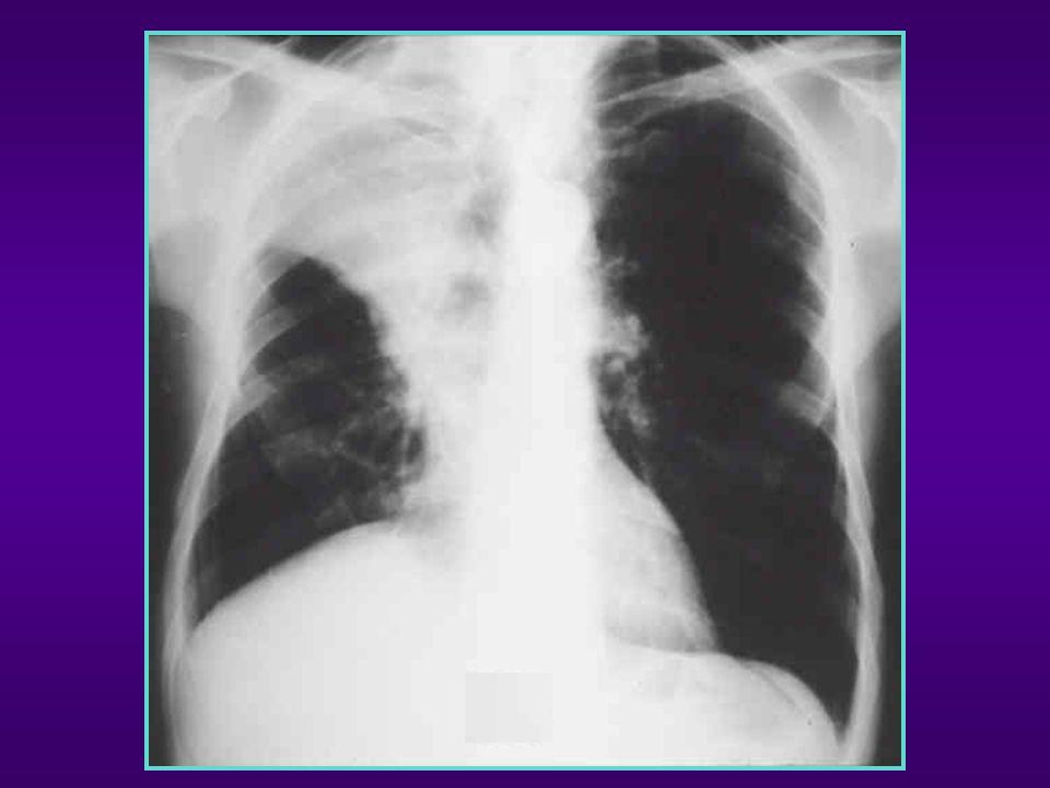 Atélectasies : Sémiologie d un COLLAPSUS LOBAIRE 1- SIGNES DIRECTS : Ù Opacités triangulaires à sommet hilaire à base périphérique Ù Rétractile : perte de volume fonction de la rétraction Ù Déplacement des scissures (concave vers le poumon sain) du hile Ù sans bronchogramme aérique (+/- ) Normal Atélectasie