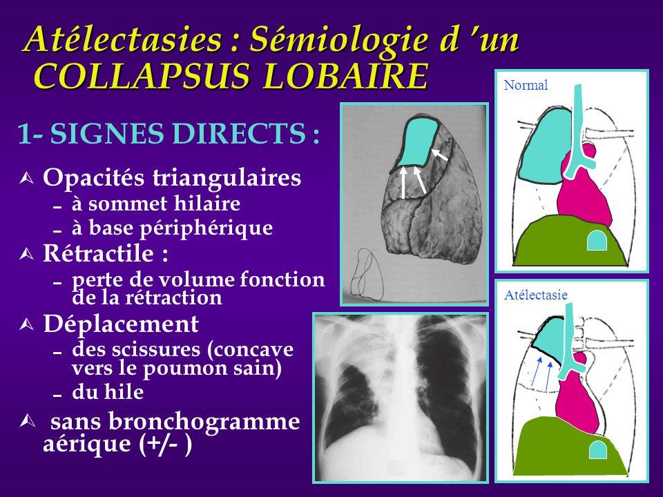 Atélectasies : Sémiologie d un COLLAPSUS LOBAIRE 1- SIGNES DIRECTS : Ù Opacités triangulaires à sommet hilaire à base périphérique Ù Rétractile : pert
