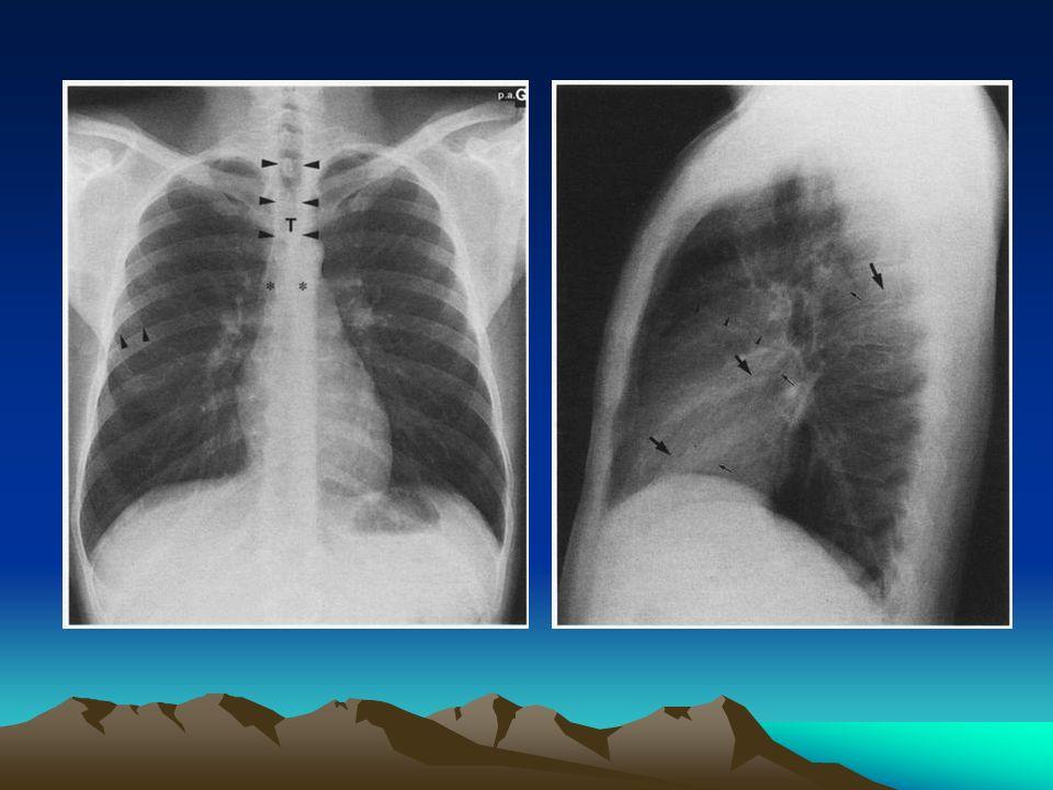 Anatomie segmentaire Interet: Extraire un corps étranger Drainage de posture dun abcès Topographie segmentaire de certains affections Chaque lobe est divise en segments / bronches segmentaires TRACHEE BSOUCHE DROITE B SOUCHE GAUCHE B L SBLMBLI Apicale Ventrale dorsale Ant int Post ext Nelson Para cardiaque anterobasale Laterobasale posterobasale BLS culmen 1+3 ventral lingula sup inf BLI nelson paracard anterobasal laterobasal posterobasal Segment antérieur BLSD = cancer pulmonaire Segment de NELSON BLID = abcès du poumon