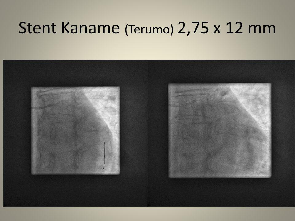 Stent Kaname (Terumo) 2,75 x 12 mm
