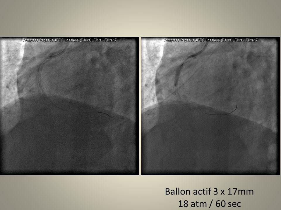Ballon actif 3 x 17mm 18 atm / 60 sec