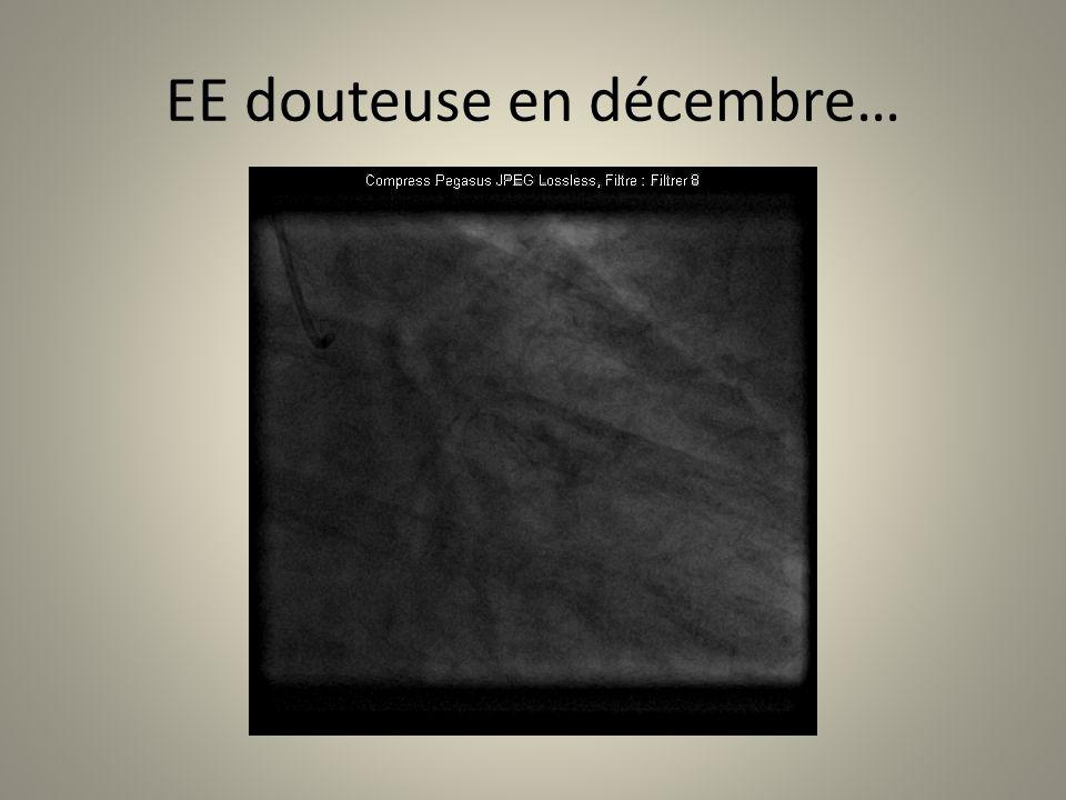 EE douteuse en décembre…