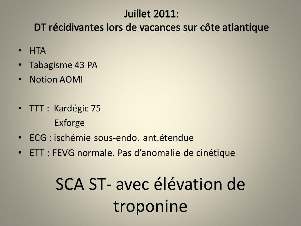 SCA ST- avec élévation de troponine HTA Tabagisme 43 PA Notion AOMI TTT : Kardégic 75 Exforge ECG : ischémie sous-endo. ant.étendue ETT : FEVG normale