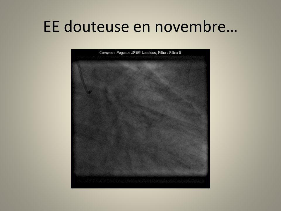 EE douteuse en novembre…