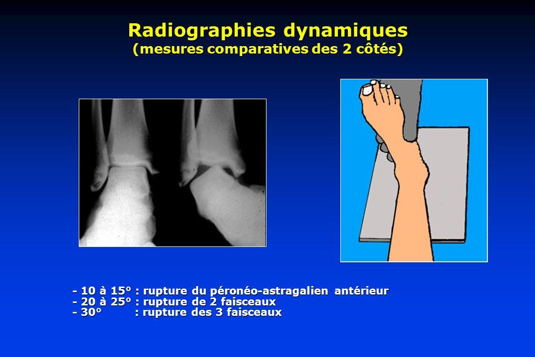 Radiographies dynamiques (mesures comparatives des 2 côtés) - 10 à 15° : rupture du péronéo-astragalien antérieur - 20 à 25° : rupture de 2 faisceaux - 30° : rupture des 3 faisceaux