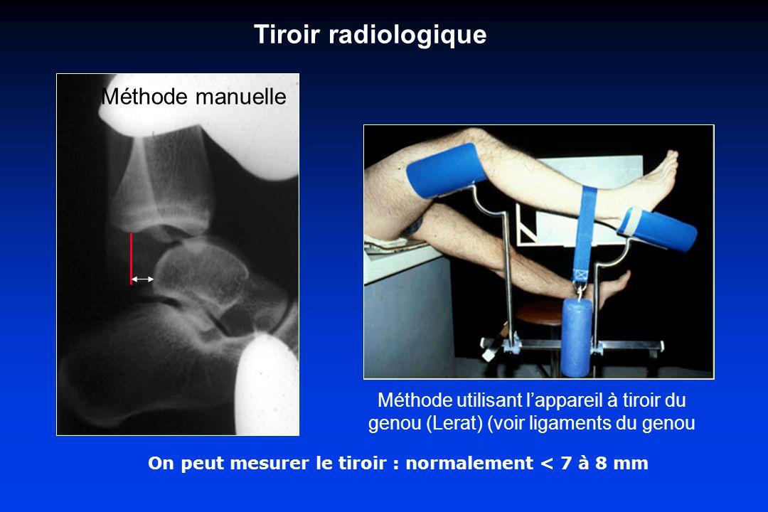 On peut mesurer le tiroir : normalement < 7 à 8 mm Tiroir radiologique Méthode manuelle Méthode utilisant lappareil à tiroir du genou (Lerat) (voir ligaments du genou
