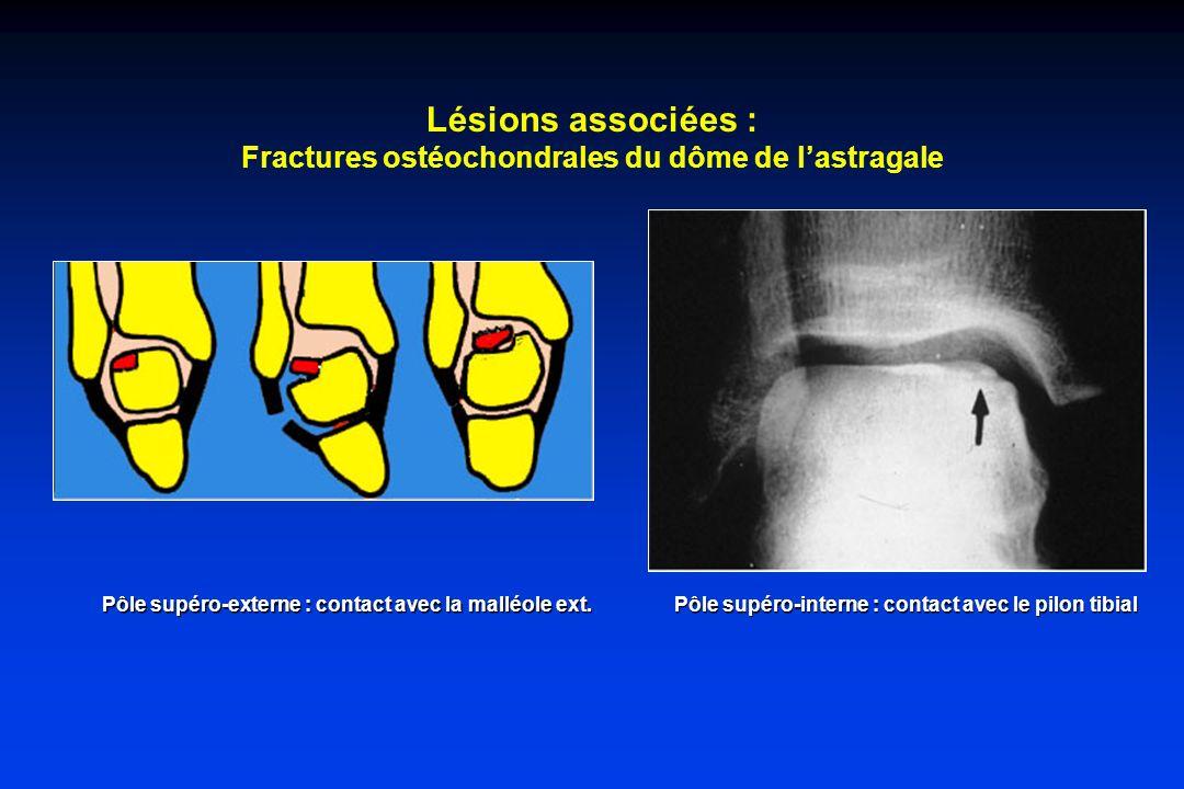 Lésions associées : Fractures ostéochondrales du dôme de lastragale Pôle supéro-externe : contact avec la malléole ext. Pôle supéro-interne : contact