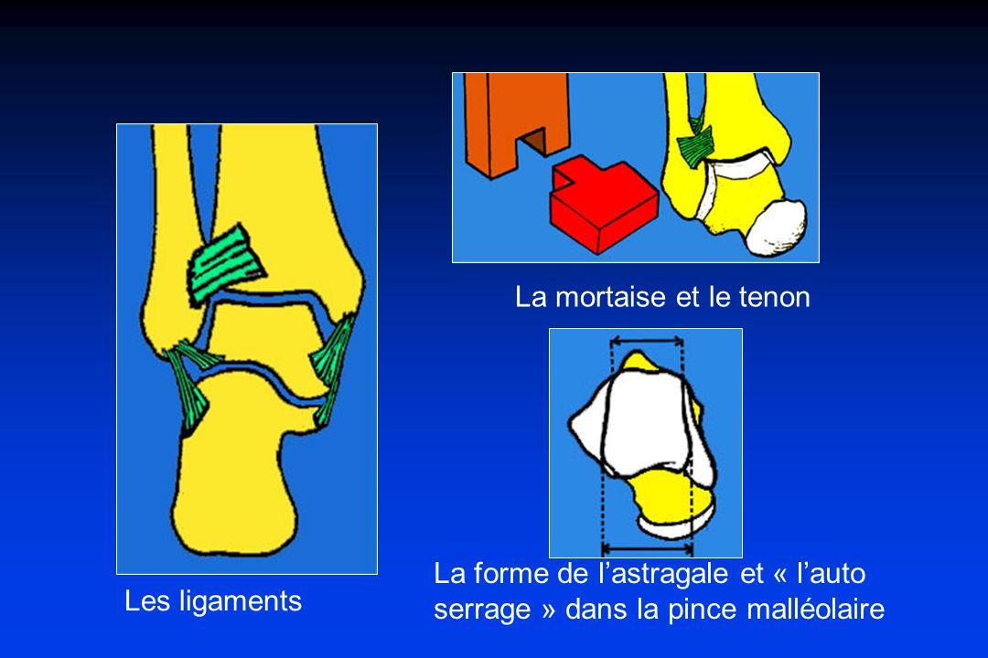 Les ligaments La mortaise et le tenon La forme de lastragale et « lauto serrage » dans la pince malléolaire